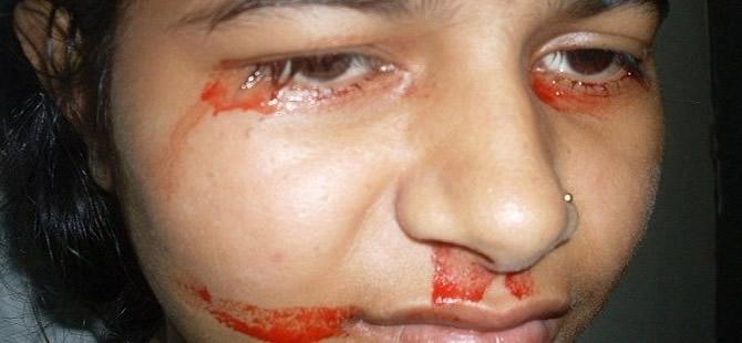 Gözlerinden kan akan kızın sırrı ne? 1