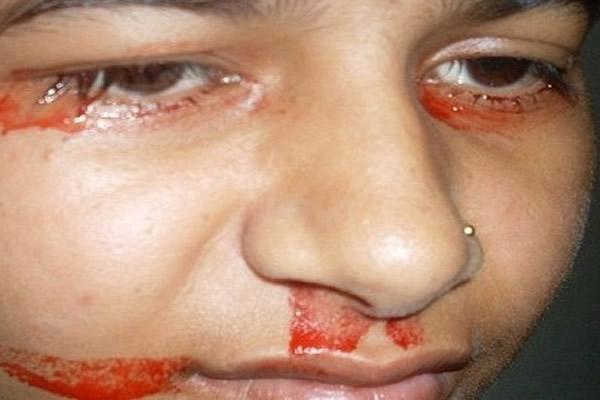 Gözlerinden kan akan kızın sırrı ne? 2
