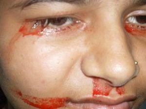 Gözlerinden kan akan kızın sırrı ne?