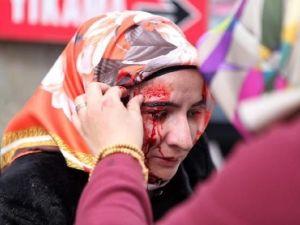 Zaman Gazetesinde Protesto Edenlere Polisten Sert Müdahale