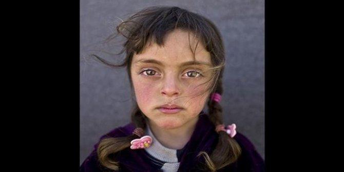 Yılın fotoğrafının kahramanı Suriyeli Zehra oldu
