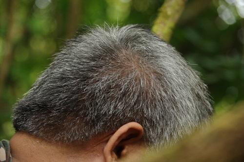 Saç Ekimi ile İlgili Bilgiler