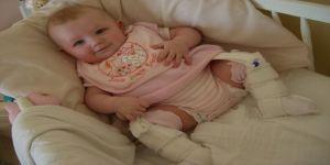 Bebeklerde Doğuştan Kalça Çıkıklığı