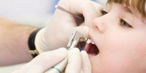 Zamansız Diş Problemleri İçin Çözüm