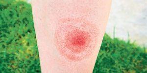 Lyme hastalığı nedir? Uzmanlar uyarıyor: Çağın salgını