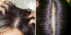 Kaşıntılı saç derisinden kurtulmak isityorsanız, işte bilmeniz gerekenler